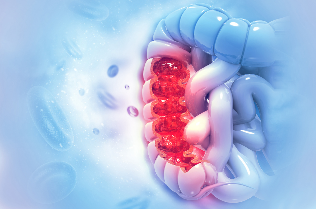 The American Cancer Society estimates that in 2021, the number of new cases of colorectal cancer will be 150,000.